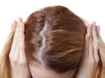 Jonge vrouw met het probleem van het haarverlies aangaande witte achtergrond royalty-vrije stock fotografie