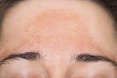 Jonge vrouw met met pigment gekleurde huid op haar voorhoofd stock foto