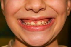 Jongen die zijn tanden toont Royalty-vrije Stock Afbeelding