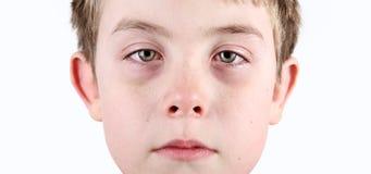Jongen met allergische shiners royalty-vrije stock afbeeldingen