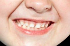 Jongen met tanden Stock Foto's