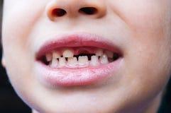 Jongen tandenloos glimlachen Stock Afbeeldingen