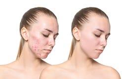 Jovem mulher antes e depois do tratamento da acne imagem de stock royalty free