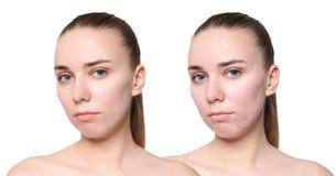Jovem mulher antes e depois do tratamento da acne no fundo branco Conceito do cuidado de pele foto de stock