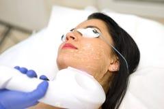 A jovem mulher bonita que encontra-se em uma tabela com protege vidros nos olhos que obtêm um tratamento da pele do laser imagens de stock