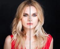 Jovem mulher com problema de pele e pele clara foto de stock royalty free