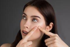 Jovem mulher que espreme sua espinha, removendo a espinha de sua cara imagem de stock