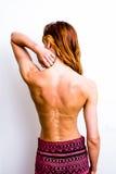Jovem mulher que toca em seu pescoço queimado Foto de Stock