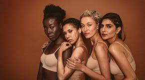 Jovens mulheres com tipos diferentes da pele fotos de stock