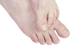 Juckende Füße. Stockbilder