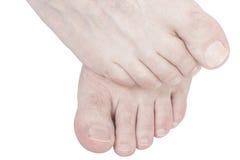Juckende Füße. Stockfoto