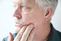 Juckender Hautausschlag auf dem Gesicht des Mannes lizenzfreie stockfotos