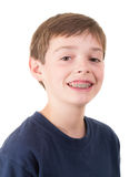 Jugendlich Junge mit Klammern stockfotografie