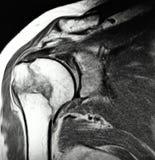 Juist humeral chirurgisch mriexamen van de halsbreuk stock illustratie