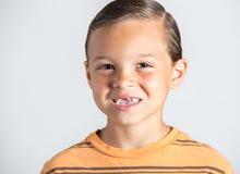 Junge, der fehlende Zähne zeigt Stockfoto