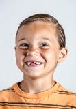 Junge, der fehlende Zähne zeigt Lizenzfreie Stockfotografie