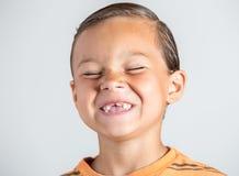 Junge, der fehlende Zähne zeigt Stockbilder