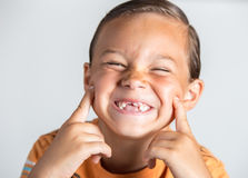 Junge, der fehlende Zähne zeigt Stockfotos