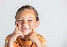 Junge, der fehlende Zähne zeigt stockbild