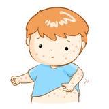 Junge, der itching Hautausschlag auf seinem Körper verkratzt stock abbildung