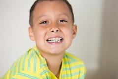 Junge, der seine Klammern auf seinen Zähnen zeigt Stockfoto