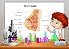 Junge in der Wissenschaftsklasse, die Brustkrebs erklärt lizenzfreie abbildung