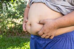Junge fett und ungesund stockbilder