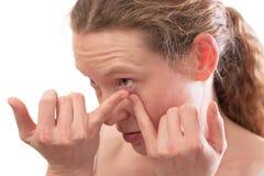 Junge Frau, die eine Kontaktlinse einsteckt Stockbilder