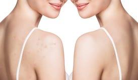 Junge Frau mit Akne auf Schultern vor und nach Behandlung stockfotos