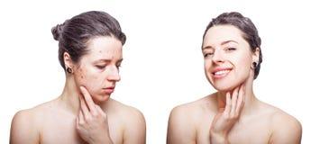 Junge Frau mit dem kühlen dunkelgrauen Haar, das Umkippen über Gesichtshautprobleme schaut und froh nach Behandlung lizenzfreie stockfotografie