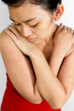 Junge Frau mit Hautallergiehautausschlag Stockfotos