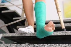 Junge Frau mit Krücke und dem gebrochenen Bein in der Form lizenzfreies stockbild