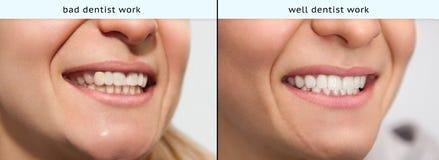 Junge Frau mit schlechter Zahnarztarbeit und wohler Zahnarztarbeit lizenzfreies stockbild