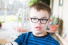 Junge mit Abstieg-Syndrom Lizenzfreie Stockfotografie