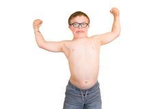 Junge mit dem Abstieg-Syndrom, das seine Muskeln biegt Stockfotografie