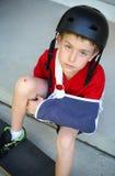 Junge mit dem Arm in einem Riemen von einem gebrochenen Humerus stockfoto