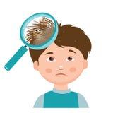 Junge mit Läusen Lupe nah oben von einem Kopf Lizenzfreies Stockbild