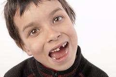 Jungen 2 mit einen Zähnen Stockfotografie