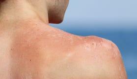 Jungenhaut zieht nach Sonnenbrand ab Stockfoto