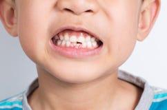 Junger asiatischer Junge, der zwei verfehlende frontale Zähne zeigt Stockfoto