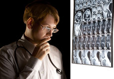 Junger Doktor, der an die Diagnose denkt Stockfotografie