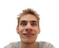 Junger Erwachsener lächelt mit Klammern Stockfotografie