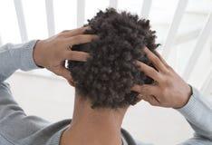Junger Mann, der unter juckender Kopfhaut leidet Lizenzfreies Stockbild