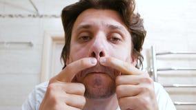 Junger Mann kommt ins Badezimmer Spiegel und drückt heraus einen Pickel unter seiner Nase zusammen stock video