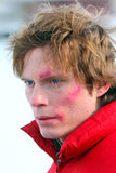 Junger Mann mit lässt auf einem Gesicht weiden Stockfotografie