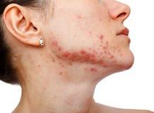 Junges Mädchen mit Hautproblem Lizenzfreie Stockbilder