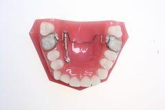Justierbare Zahn-Klammern Stockfotos