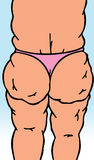 Körper mit Cellulite Stockfotografie