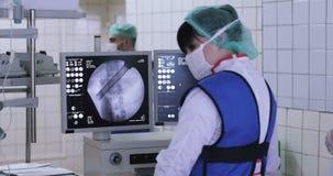 4K腹部的腹腔镜手术 股票录像
