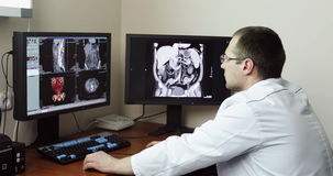 4K γιατρός στο νοσοκομείο που εξετάζει την ανίχνευση CT απόθεμα βίντεο